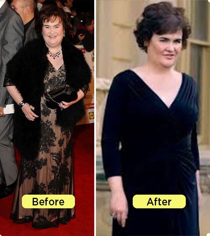 Susan Boyle weight loss Before and after comparison